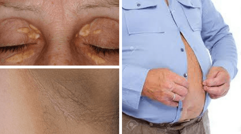 xanthelasma, acanthuses nigrican, metabolic syndrome, pot belly